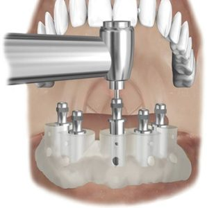 Guide chirurgical pour implant dentaire