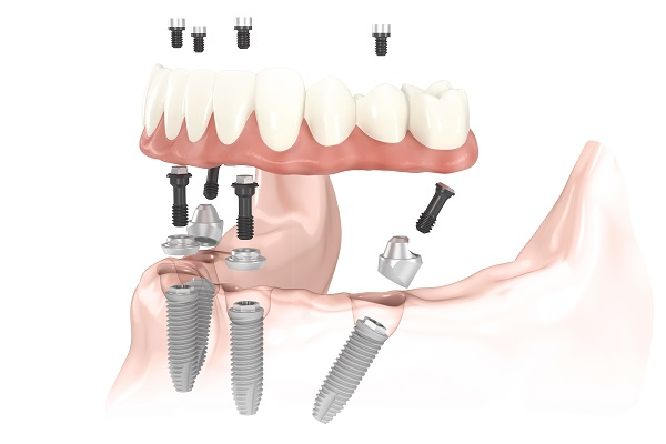 Bridge complet sur 4 implants dentaires