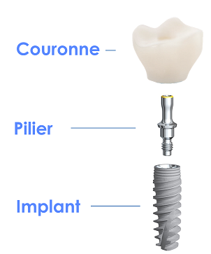 couronne-pilier-implant dentaire