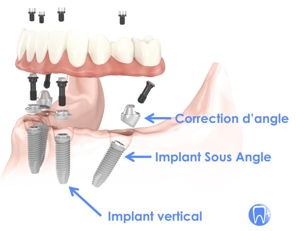Implant dentaire sous angle