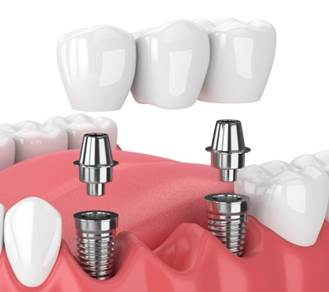 Prothèse Bridge sur implant
