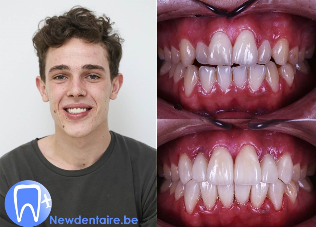 Hollywood smile ou sourire naturel