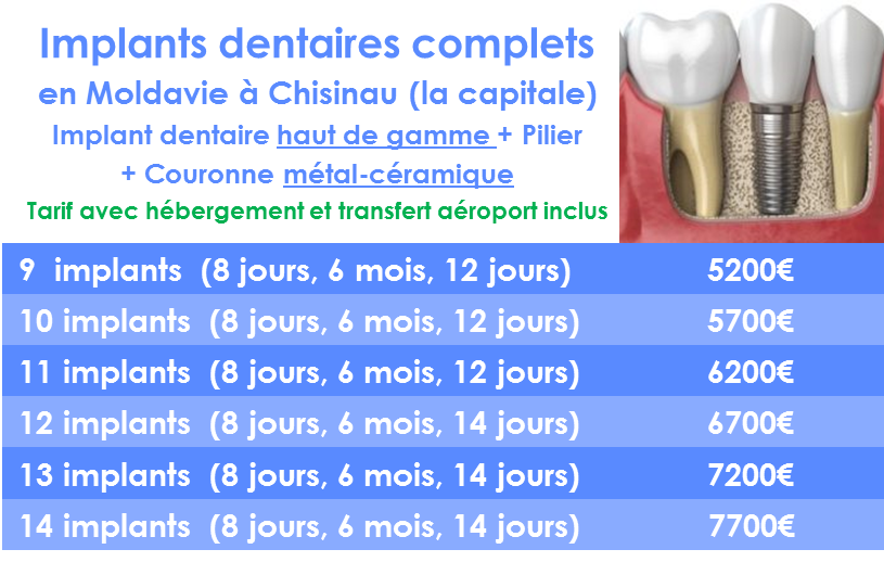 Se refaire les dents avec implant dentaire Moldavie