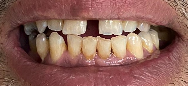 Photo dentition 3