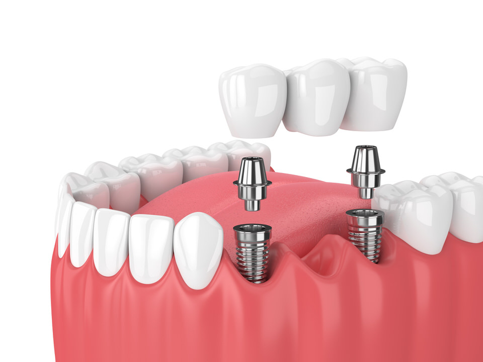 Bridge fixe sur implant