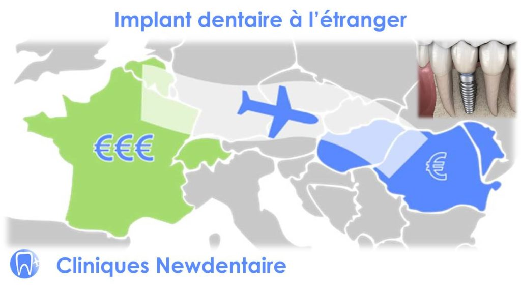 Implant dentaire à l'étranger