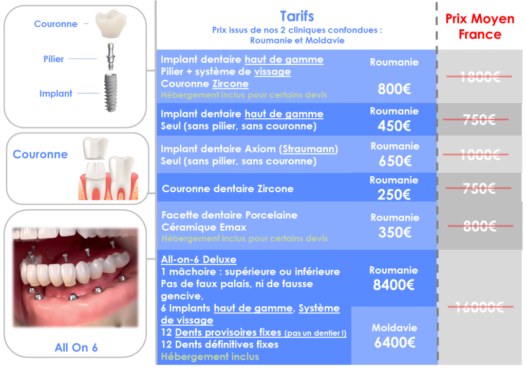 Prix implant dentaire Roumanie