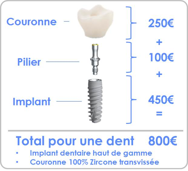 Prix implant dentaire complet