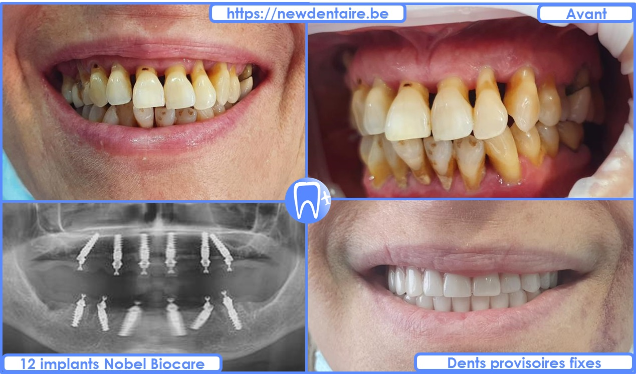 Implant dentaire All-on-6 Nobel Biocare - dents provisoires fixes